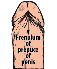 Frenulum of prepuce of penis